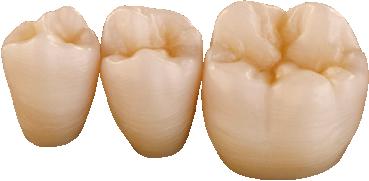 prettau-anterior-comperison-zirconia