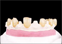 tecno-med-mineral-dentine-produktinfo-3er